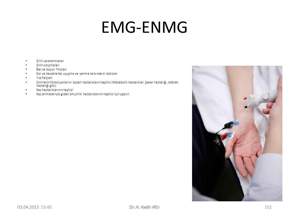 EMG-ENMG 09.04.2017 09.04.2017 12:35 Dr. A. Kadir Atlı