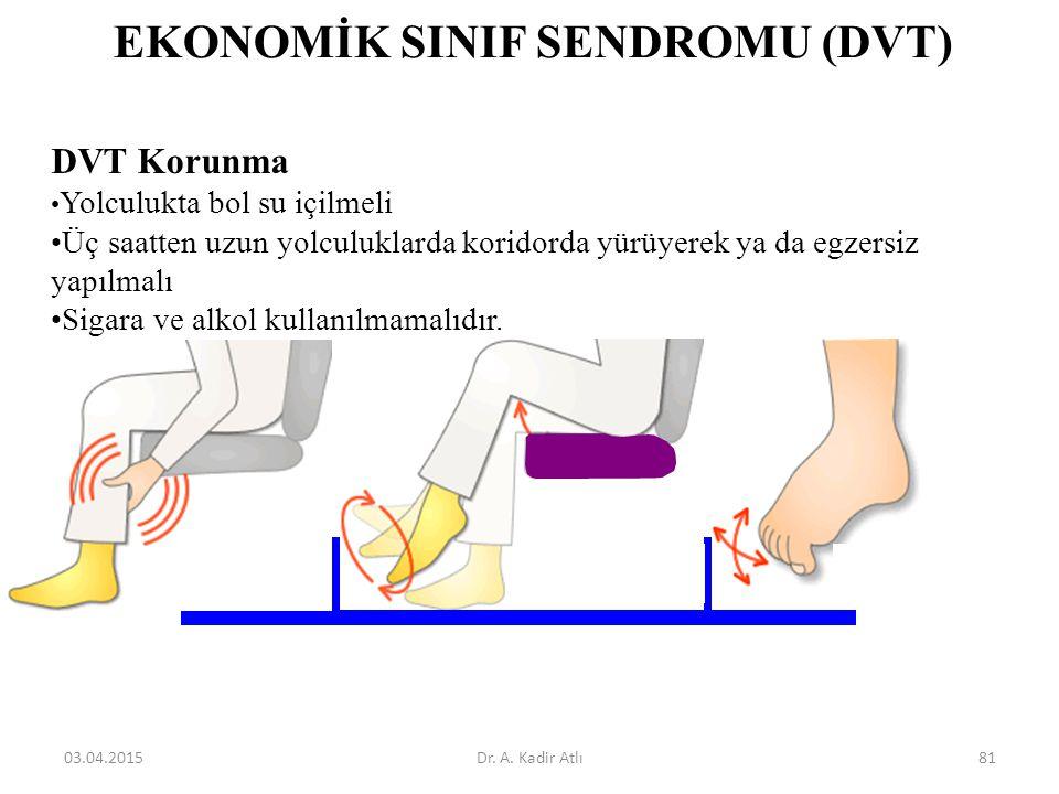 EKONOMİK SINIF SENDROMU (DVT)