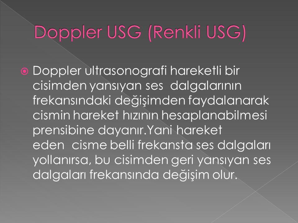 Doppler USG (Renkli USG)