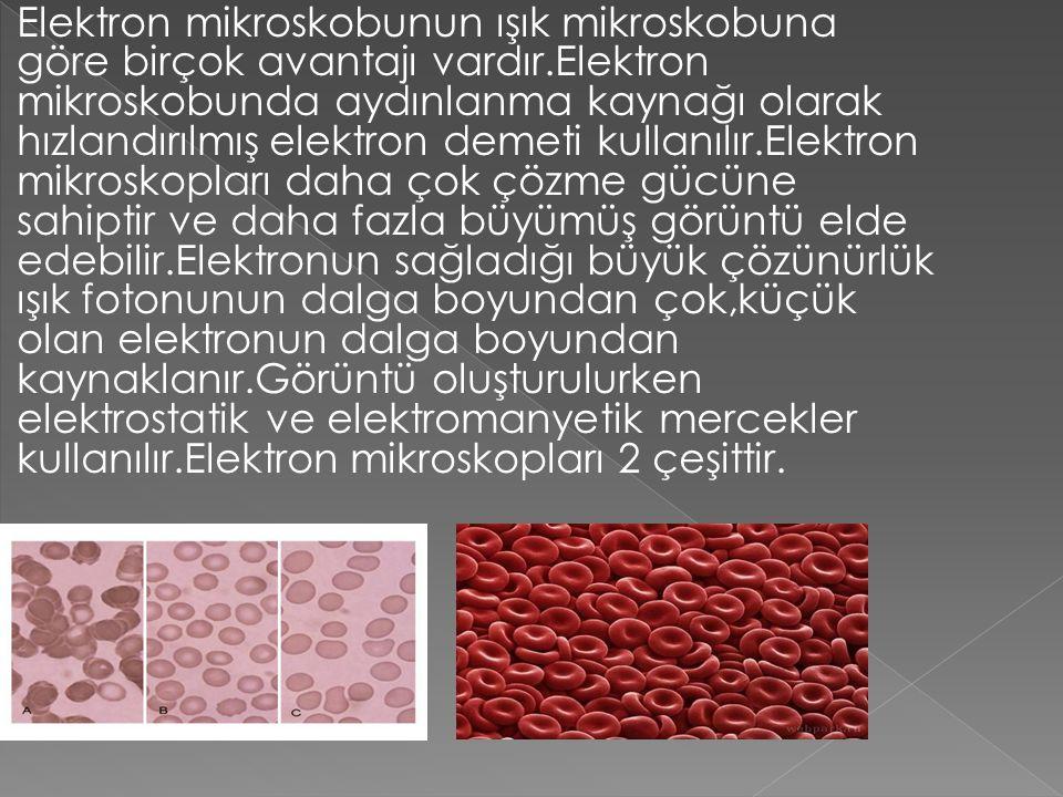 Elektron mikroskobunun ışık mikroskobuna göre birçok avantajı vardır