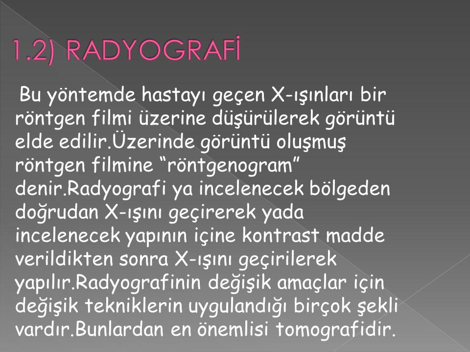 1.2) RADYOGRAFİ