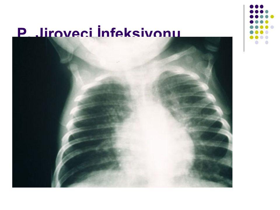 P. Jiroveci İnfeksiyonu