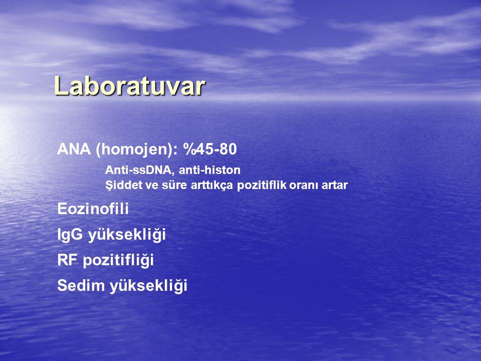 Laboratuvar ANA (homojen): %45-80 Anti-ssDNA, anti-histon Eozinofili