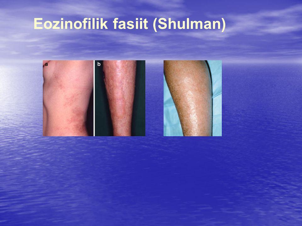 Eozinofilik fasiit (Shulman)