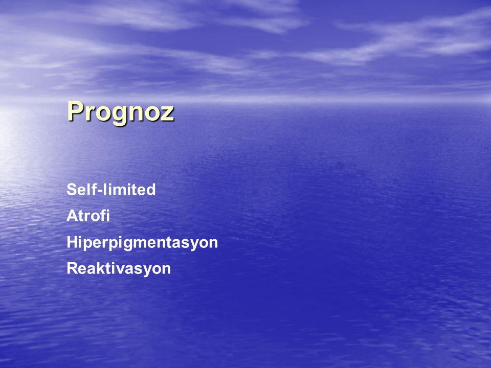 Prognoz Self-limited Atrofi Hiperpigmentasyon Reaktivasyon