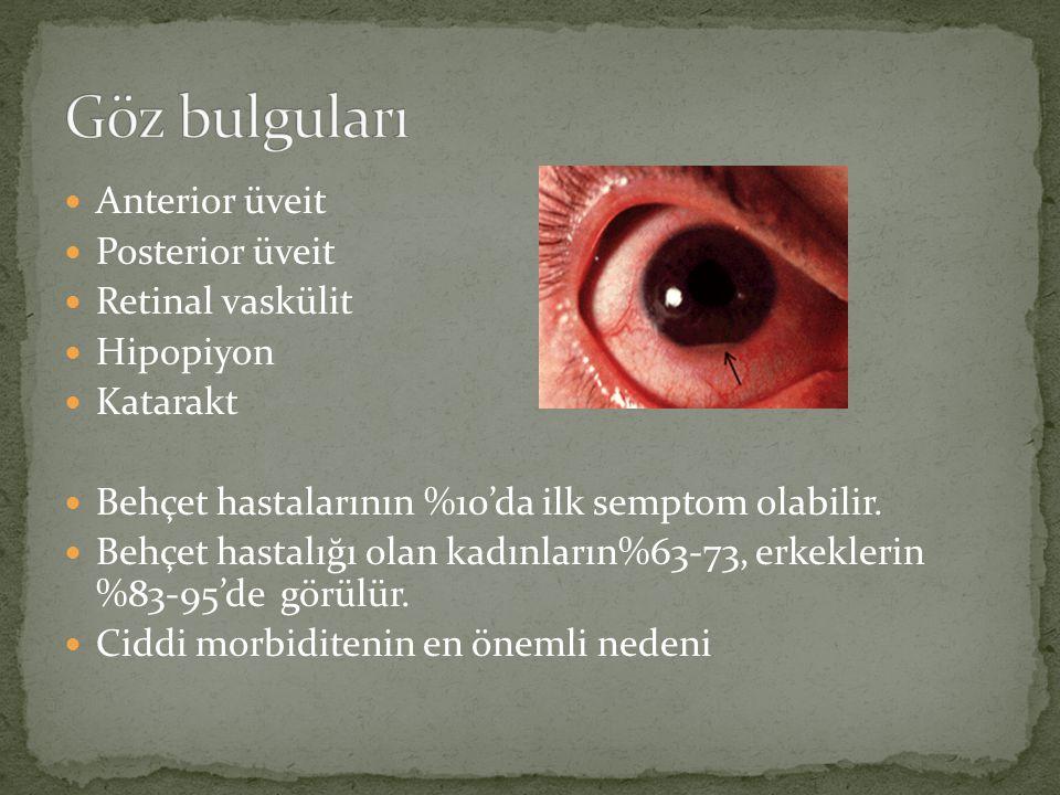 Göz bulguları Anterior üveit Posterior üveit Retinal vaskülit