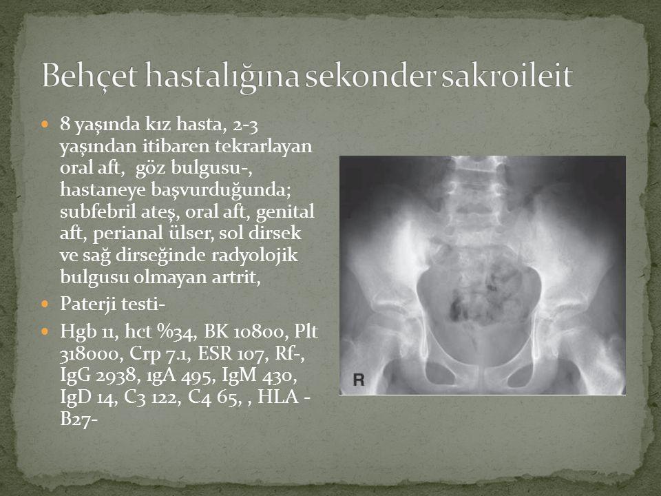 Behçet hastalığına sekonder sakroileit