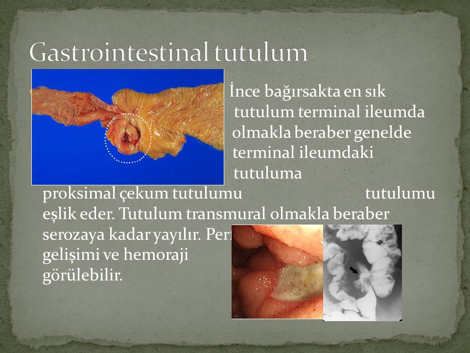 Gastrointestinal tutulum