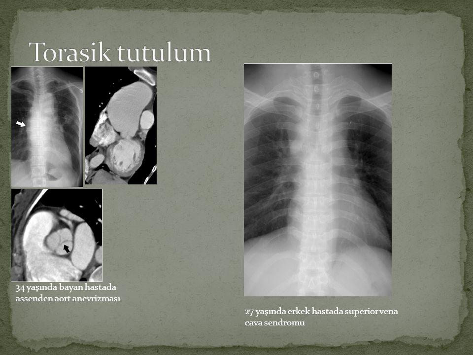 Torasik tutulum 34 yaşında bayan hastada assenden aort anevrizması