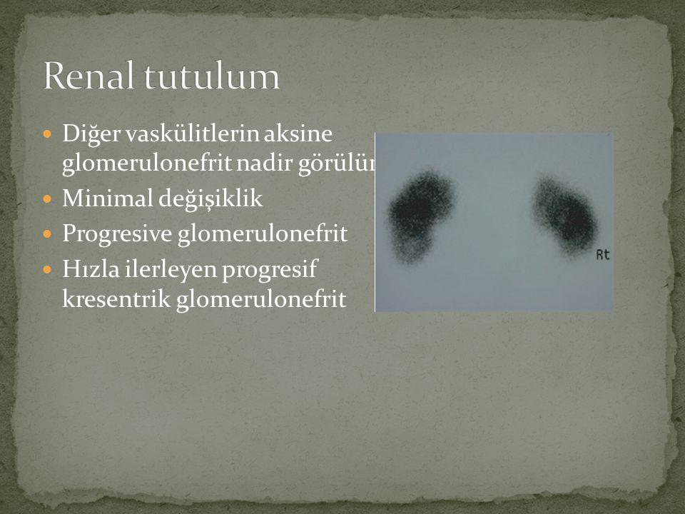 Renal tutulum Diğer vaskülitlerin aksine glomerulonefrit nadir görülür. Minimal değişiklik.