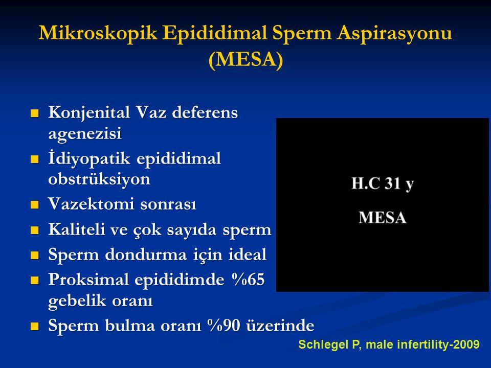 Mikroskopik Epididimal Sperm Aspirasyonu (MESA)