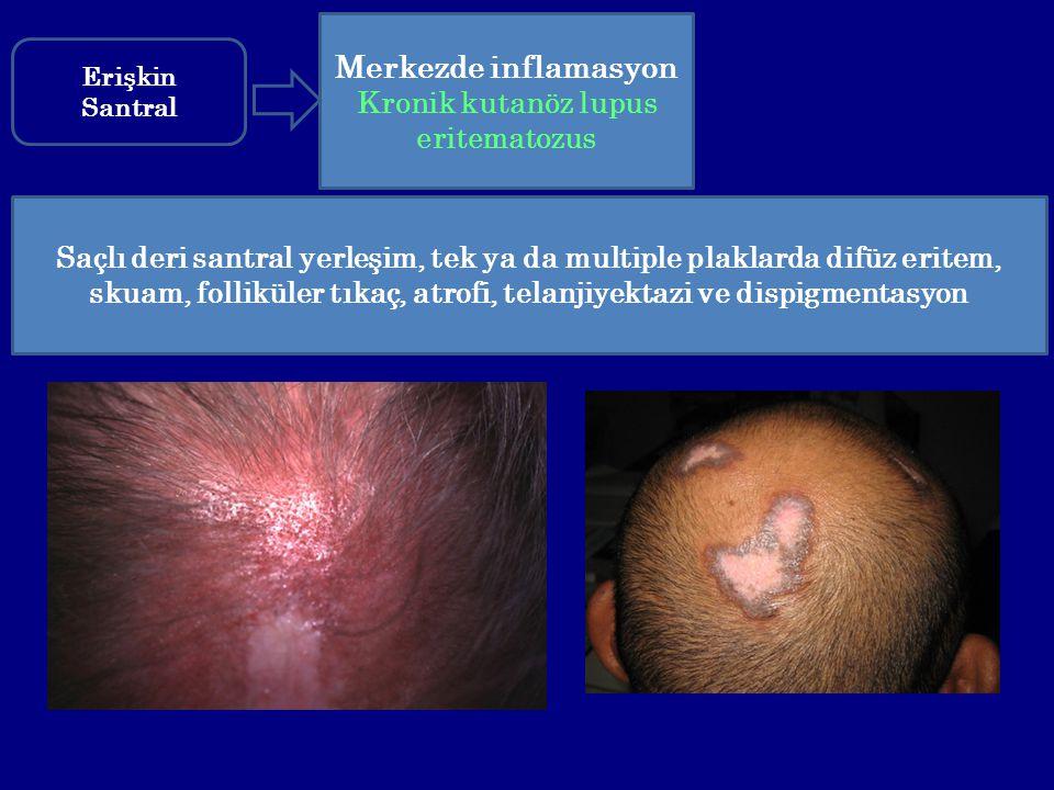 Kronik kutanöz lupus eritematozus