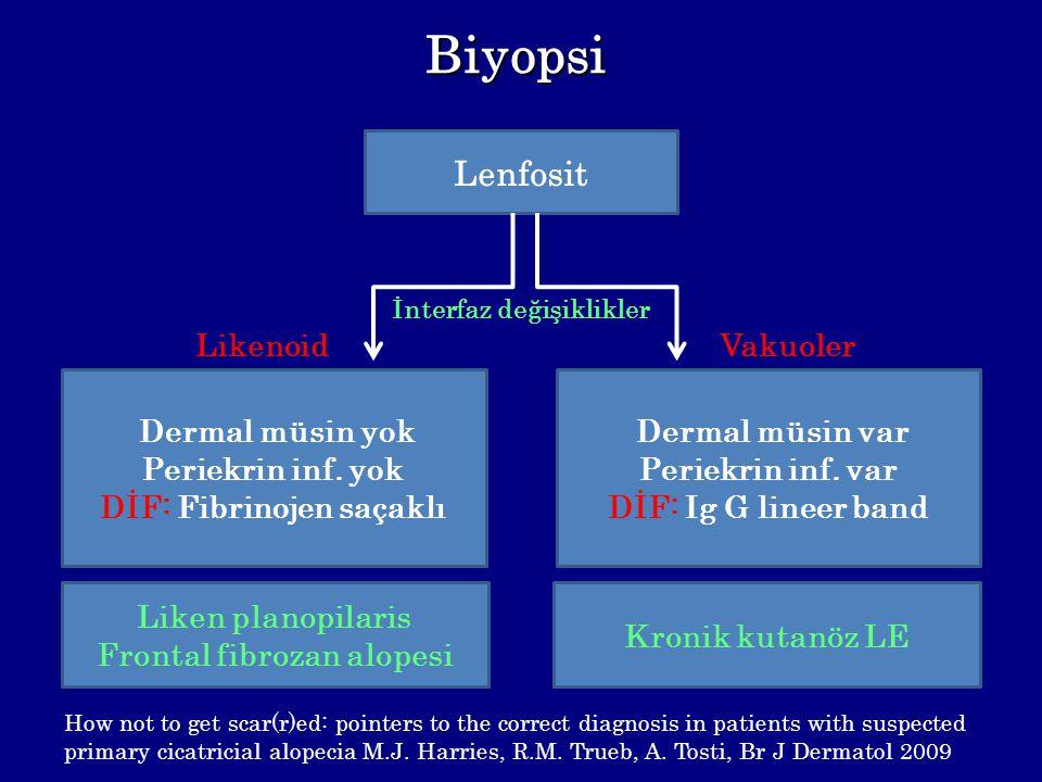 DİF: Fibrinojen saçaklı Frontal fibrozan alopesi