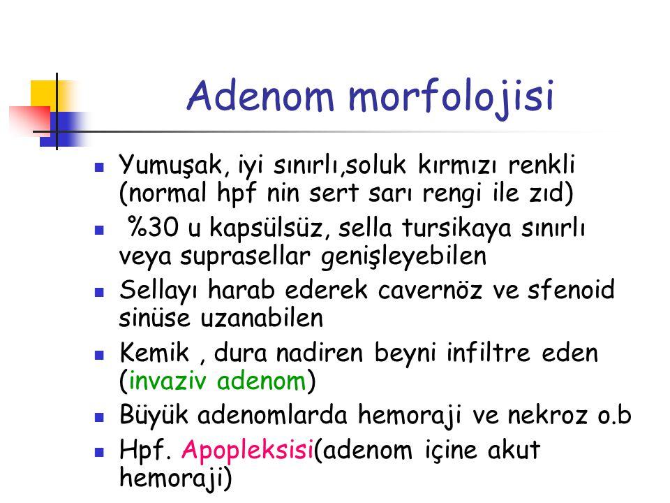 Adenom morfolojisi Yumuşak, iyi sınırlı,soluk kırmızı renkli (normal hpf nin sert sarı rengi ile zıd)