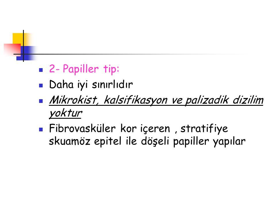 2- Papiller tip: Daha iyi sınırlıdır. Mikrokist, kalsifikasyon ve palizadik dizilim yoktur.