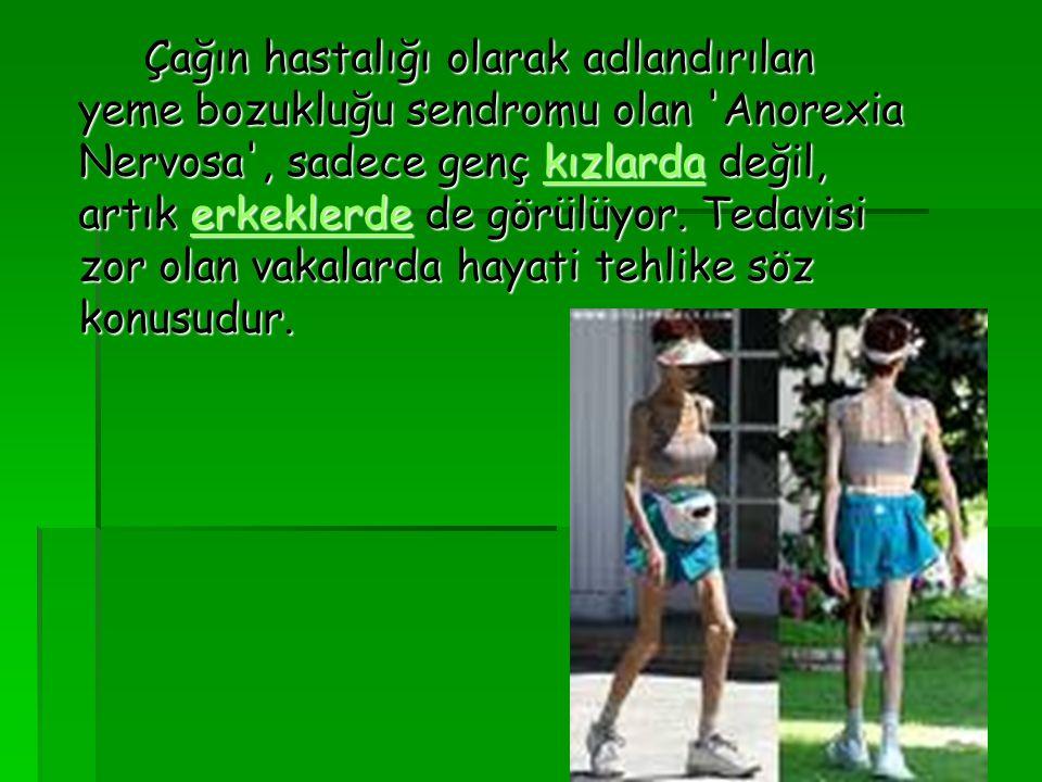 Çağın hastalığı olarak adlandırılan yeme bozukluğu sendromu olan Anorexia Nervosa , sadece genç kızlarda değil, artık erkeklerde de görülüyor.
