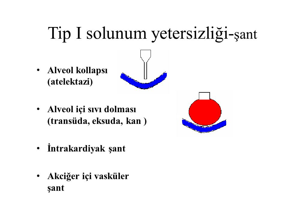 Tip I solunum yetersizliği-şant