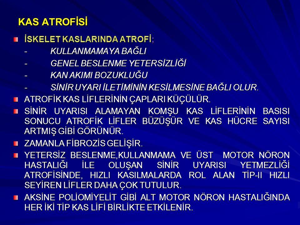 KAS ATROFİSİ İSKELET KASLARINDA ATROFİ; - KULLANMAMAYA BAĞLI