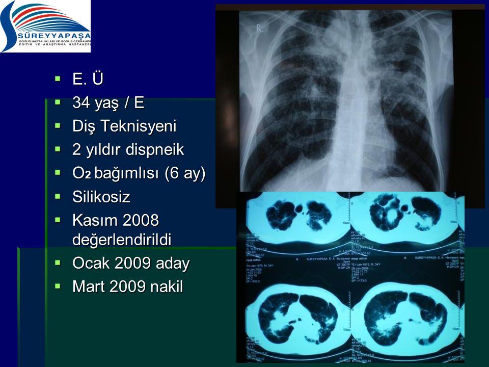 E. Ü 34 yaş / E. Diş Teknisyeni. 2 yıldır dispneik. O2 bağımlısı (6 ay) Silikosiz. Kasım 2008 değerlendirildi.