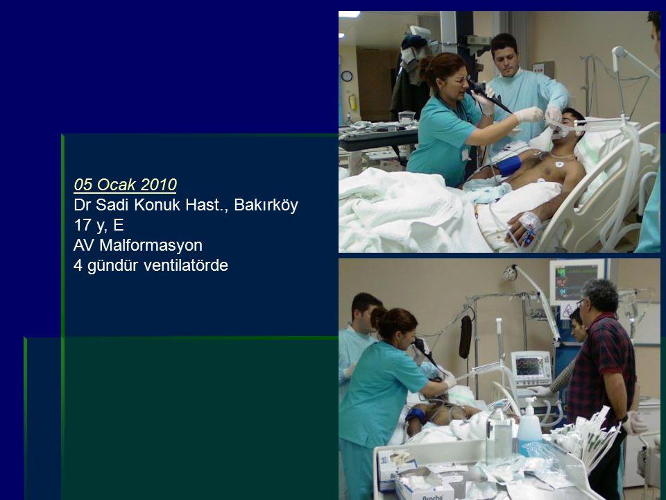 05 Ocak 2010 Dr Sadi Konuk Hast., Bakırköy 17 y, E AV Malformasyon 4 gündür ventilatörde