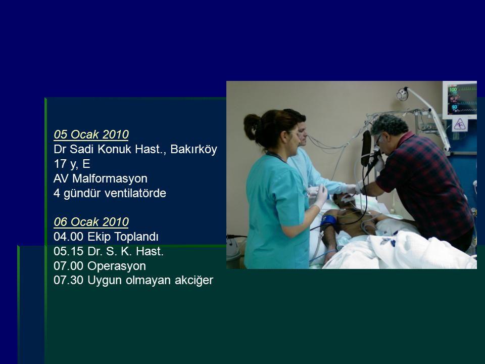 05 Ocak 2010 Dr Sadi Konuk Hast., Bakırköy. 17 y, E. AV Malformasyon. 4 gündür ventilatörde. 06 Ocak 2010.