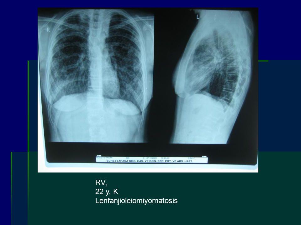 RV, 22 y, K Lenfanjioleiomiyomatosis