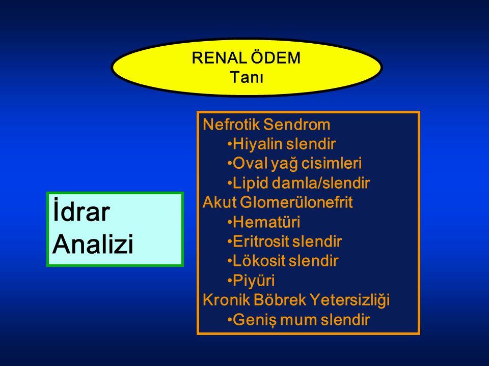 İdrar Analizi RENAL ÖDEM Tanı Nefrotik Sendrom Hiyalin slendir