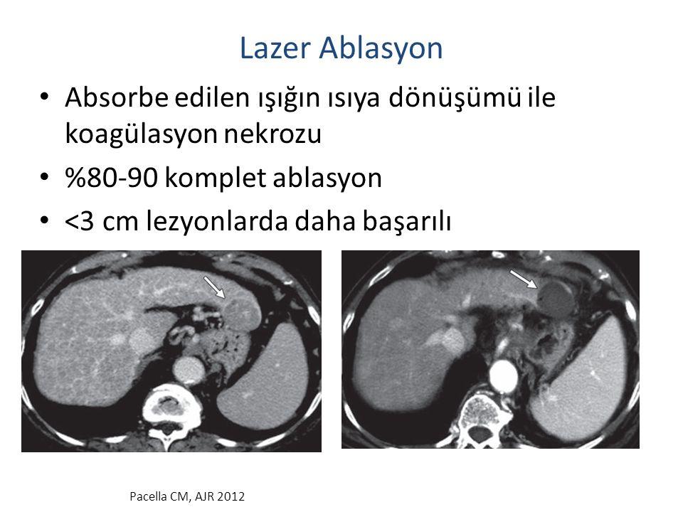 Lazer Ablasyon Absorbe edilen ışığın ısıya dönüşümü ile koagülasyon nekrozu. %80-90 komplet ablasyon.
