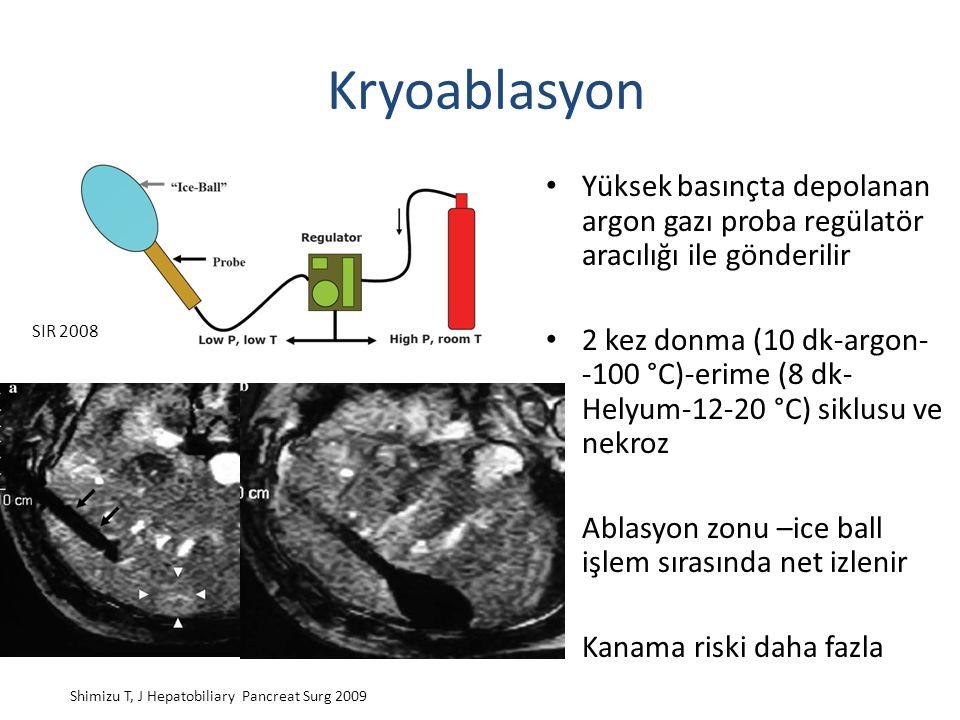 Kryoablasyon Yüksek basınçta depolanan argon gazı proba regülatör aracılığı ile gönderilir.