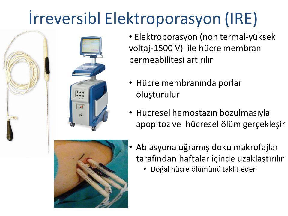 İrreversibl Elektroporasyon (IRE)