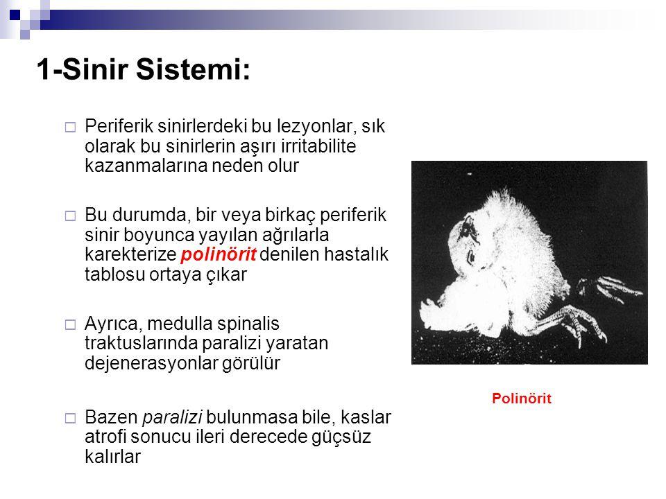 1-Sinir Sistemi: Polinörit