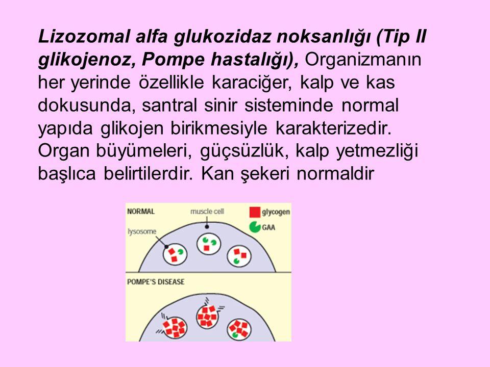 Lizozomal alfa glukozidaz noksanlığı (Tip II glikojenoz, Pompe hastalığı), Organizmanın her yerinde özellikle karaciğer, kalp ve kas dokusunda, santral sinir sisteminde normal yapıda glikojen birikmesiyle karakterizedir.