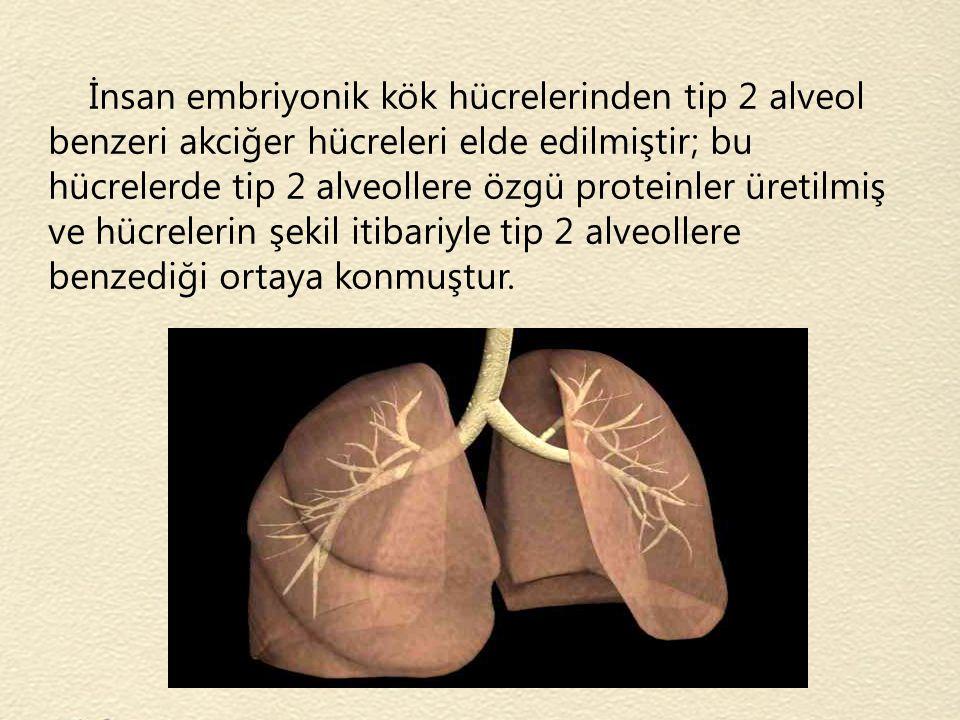 İnsan embriyonik kök hücrelerinden tip 2 alveol benzeri akciğer hücreleri elde edilmiştir; bu hücrelerde tip 2 alveollere özgü proteinler üretilmiş ve hücrelerin şekil itibariyle tip 2 alveollere benzediği ortaya konmuştur.
