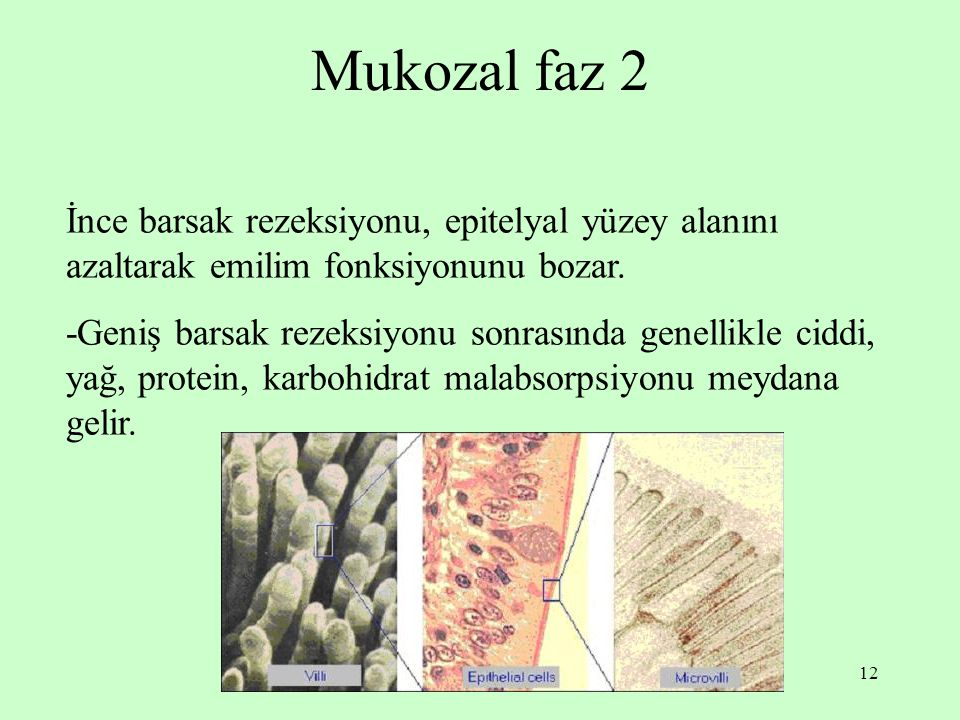 Mukozal faz 2 İnce barsak rezeksiyonu, epitelyal yüzey alanını azaltarak emilim fonksiyonunu bozar.
