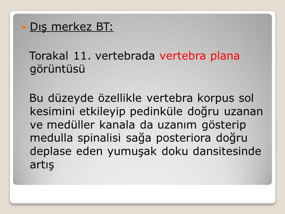 Dış merkez BT: Torakal 11. vertebrada vertebra plana görüntüsü.