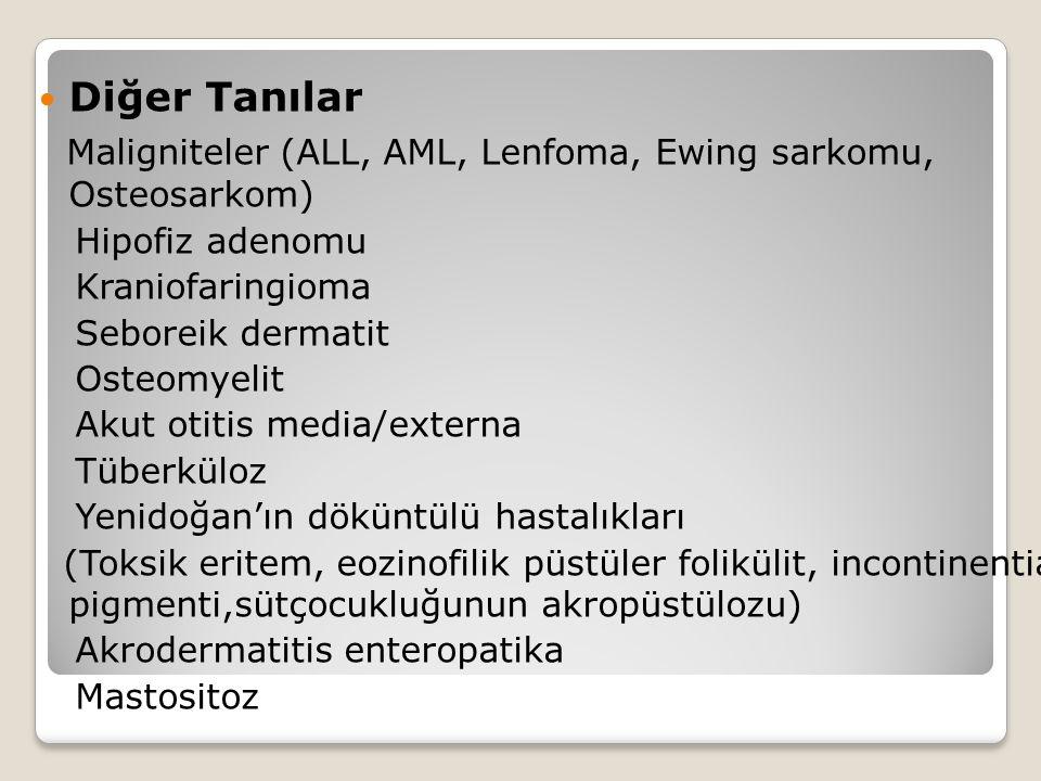 Maligniteler (ALL, AML, Lenfoma, Ewing sarkomu, Osteosarkom)