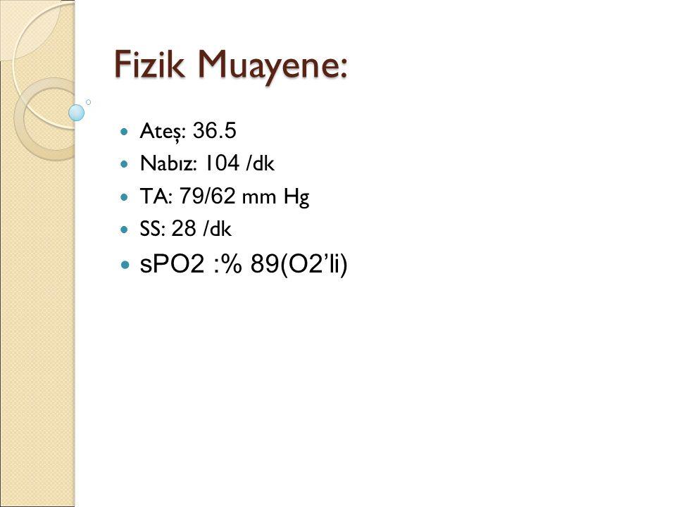 Fizik Muayene: sPO2 :% 89(O2'li) Ateş: 36.5 Nabız: 104 /dk