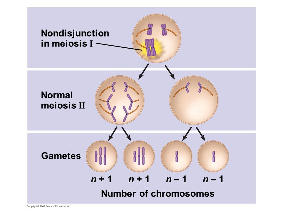Nondisjunction in meiosis I Normal meiosis II Gametes n + 1 n + 1