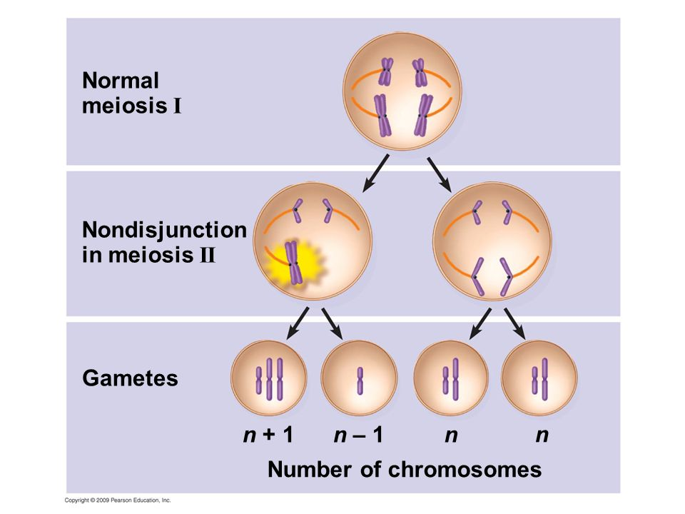 Normal meiosis I Nondisjunction in meiosis II Gametes n + 1 n – 1 n n