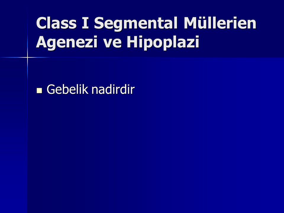 Class I Segmental Müllerien Agenezi ve Hipoplazi