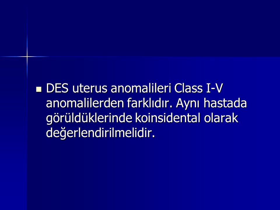 DES uterus anomalileri Class I-V anomalilerden farklıdır