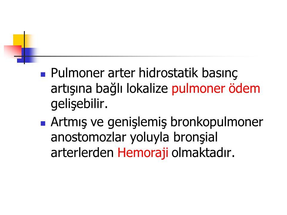 Pulmoner arter hidrostatik basınç artışına bağlı lokalize pulmoner ödem gelişebilir.