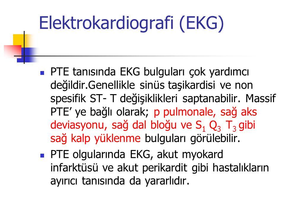Elektrokardiografi (EKG)