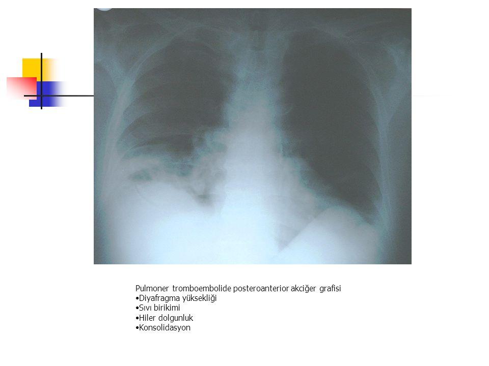 Pulmoner tromboembolide posteroanterior akciğer grafisi