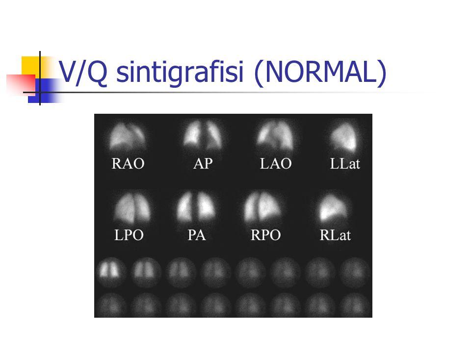 V/Q sintigrafisi (NORMAL)