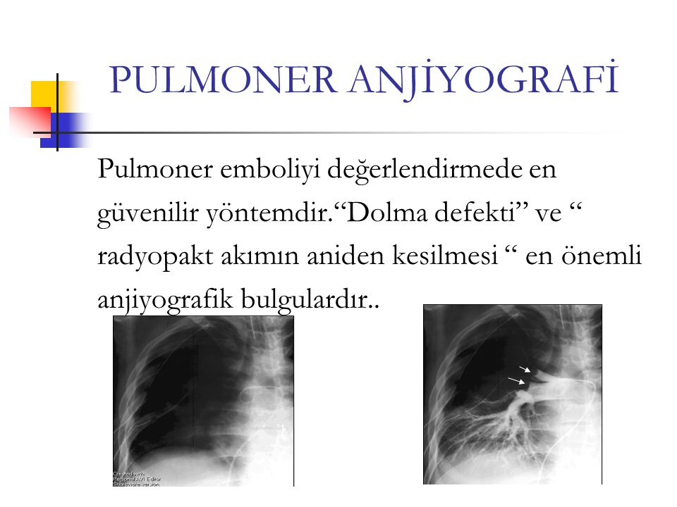 PULMONER ANJİYOGRAFİ Pulmoner emboliyi değerlendirmede en