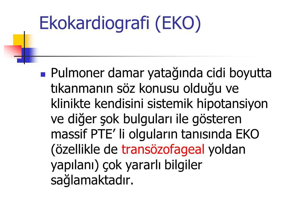 Ekokardiografi (EKO)