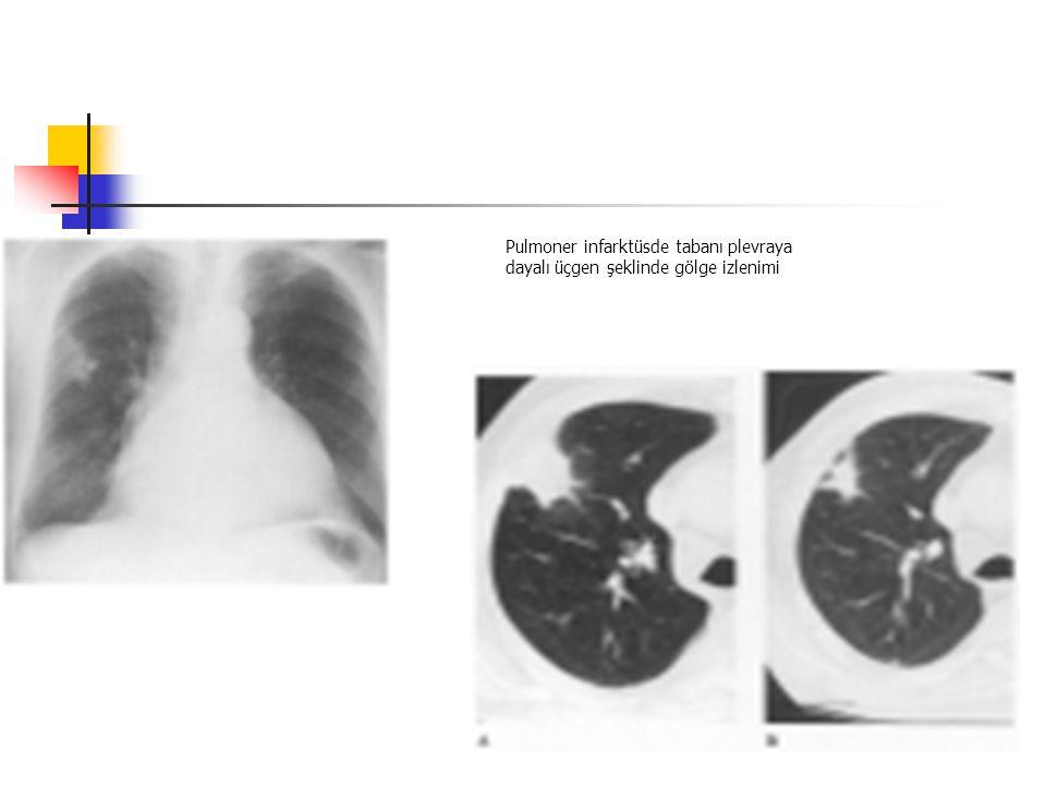 Pulmoner infarktüsde tabanı plevraya dayalı üçgen şeklinde gölge izlenimi