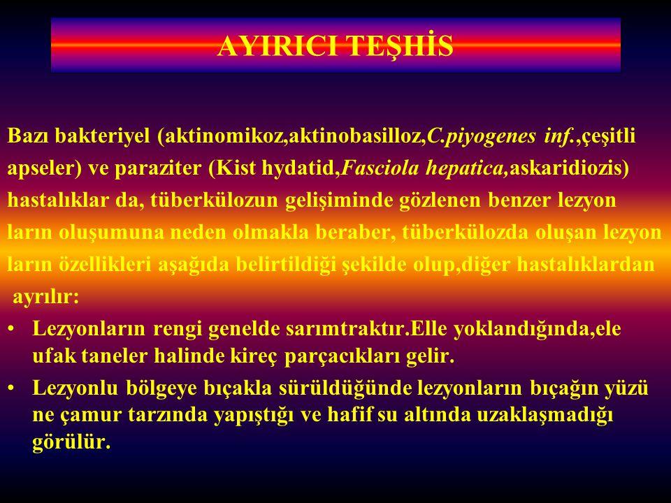AYIRICI TEŞHİS Bazı bakteriyel (aktinomikoz,aktinobasilloz,C.piyogenes inf.,çeşitli.