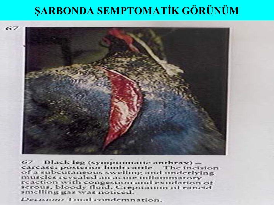 ŞARBONDA SEMPTOMATİK GÖRÜNÜM